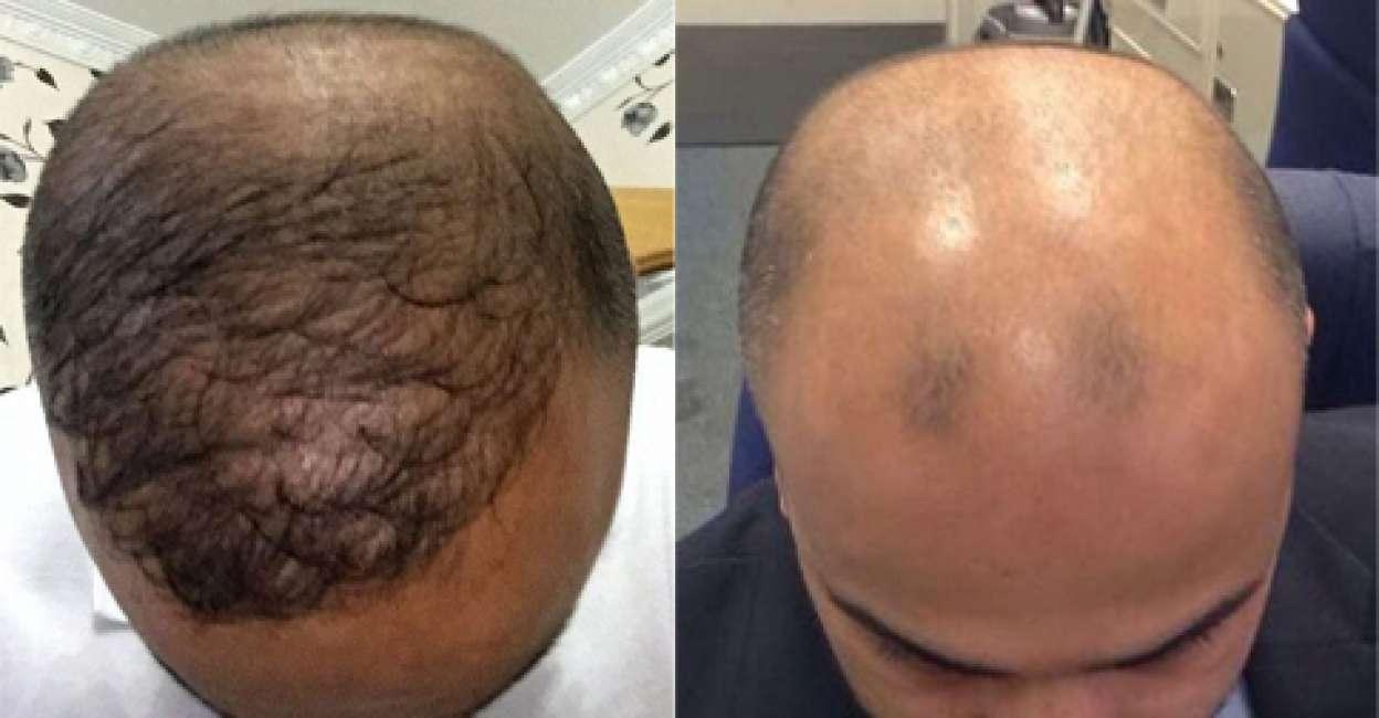"""Quanto costa """"allevare"""" i capelli per risparmiare sui trapianti"""