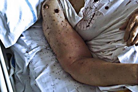 Napoli, formiche in ospedale: indagati gli infermieri