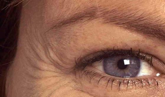 Lo smog invecchia la nostra pelle, ecco i rimedi antirughe